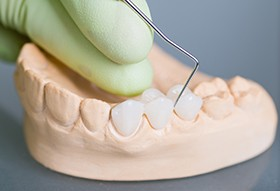 model of teeth and crowns