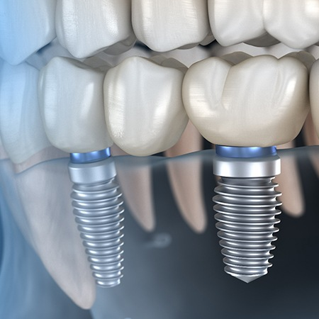 Illustration of dental implant bridge