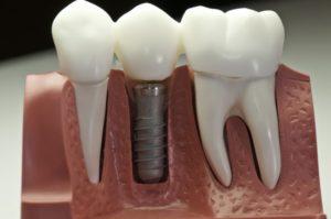 image of dental crown on implant